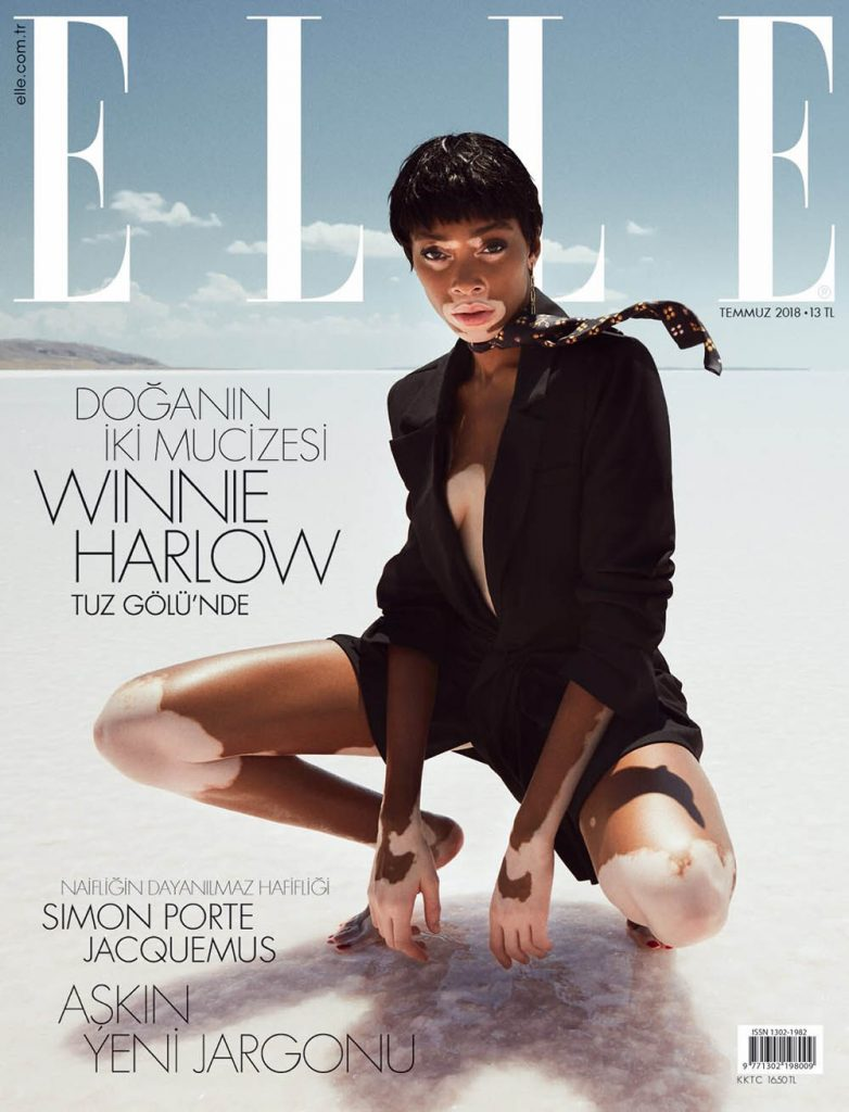 Winnie Harlow covers Elle Turkey July 2018 by Emre Guven