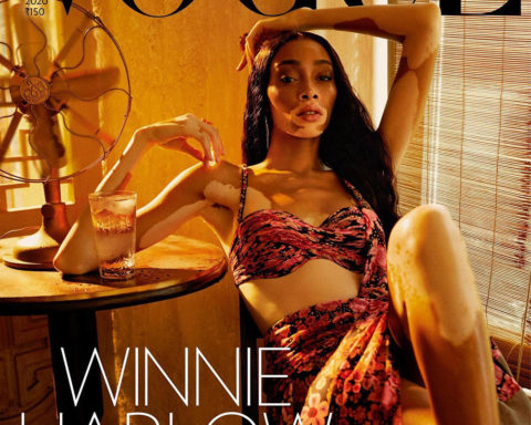 Winnie Harlow covers Vogue India March 2020 by Billy Kidd